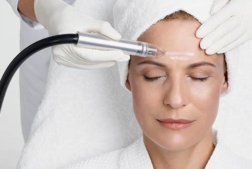 Skin-Peeling Microdermabrasion