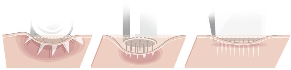 Skin-Needling-Methoden für eine frischere Haut